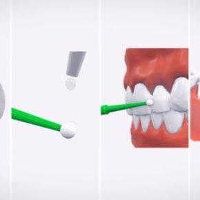 Samodzielne leczenie nadwrażliwych zębów